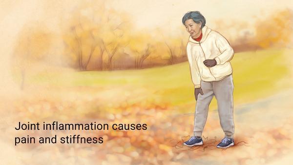 Los 5 mejores aceites esenciales para aliviar la artritis, la artritis y el reumatismo